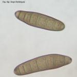 Conidios de B. sorokiniana
