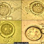 Phytophthora sojae Kauffmann & Gerdemann; Pudrición de raíz y tallo por Phytophthora