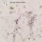 15 Conidios sobre conidióforos libres de Botrytis cinerea