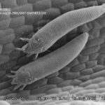 14 SEM del ácaro Aceria aloinis (Deinhart, 2011)