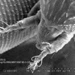 15 SEM detalle del aparato bucal del ácaro Aceria aloinis (Deinhart, 2011)